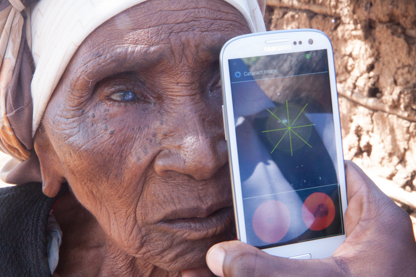 Woman being tested using cataract app on Samsung phone